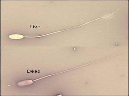 Male Infertility - Natural male infertility solutions