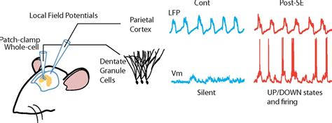 Abnormal UP/DOWN Membrane Potential Dynamics Coupled with