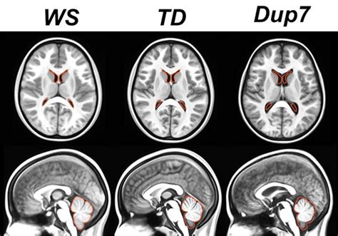 Autism-linked genetic region affects size of brain