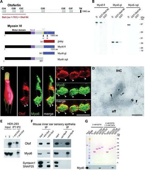 Myo6 and otoferlin co-localize at the IHC synaptic active